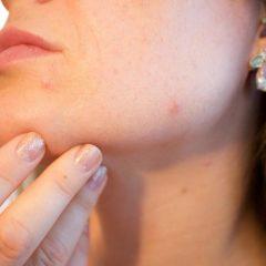 Cara Menghilangkan Komedo di Hidung dan Wajah Dengan Tuntas